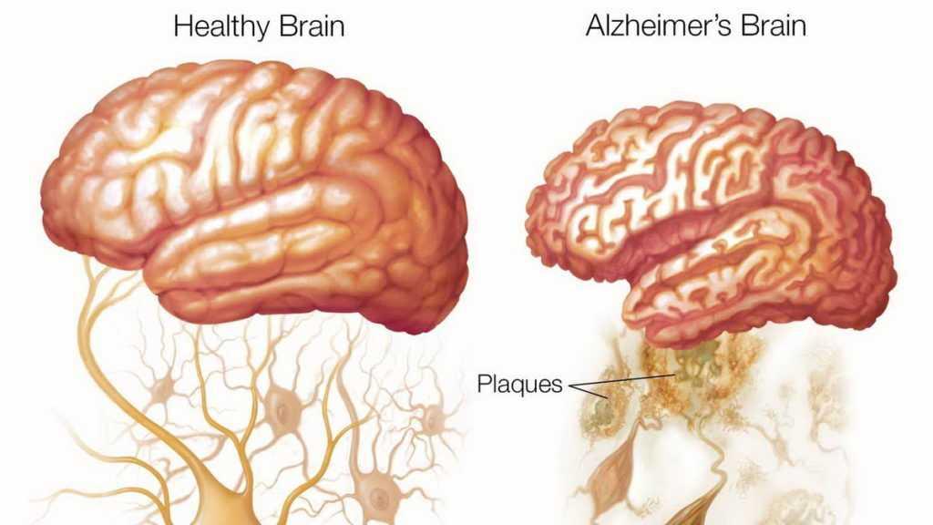 Reduction of brain with Alzheimer diseaser