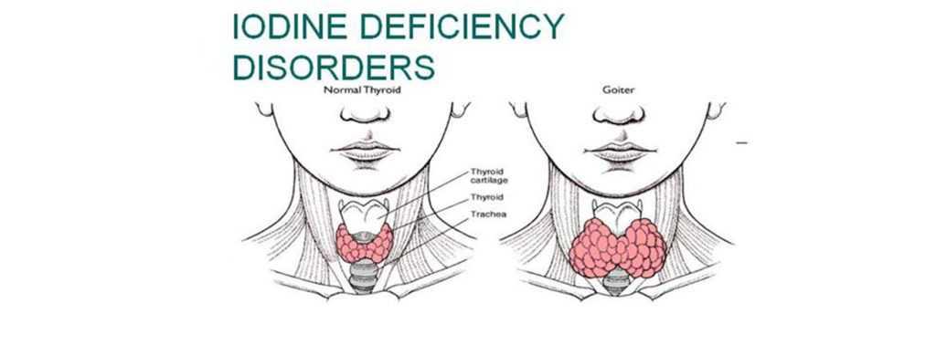 iodine level deficiency